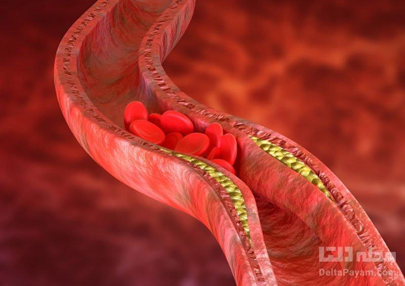 افزایش کلسترول خوب و کاهش کلسترول بد با رژیم غذایی