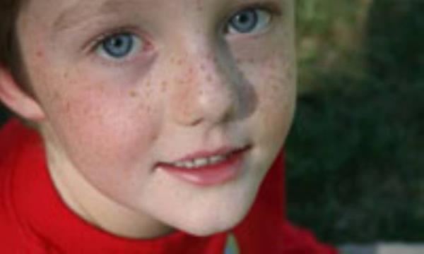 ملاسما، اختلال رنگدانه ای در پوست